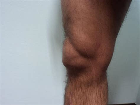 dolore sotto al ginocchio parte interna bursite no joelho sintomas tratamento e rem 233 dios