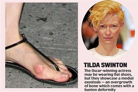 celebrity dry feet toe curling tootsies daily mail online