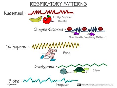 breathing pattern in heart failure nursing school medical surgical nursing mnemonics