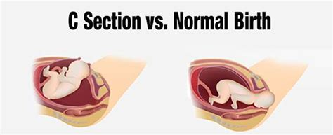 vaginal infection after c section why you should never opt for a c section and the dangers