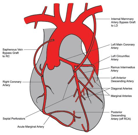 diagram of coronary arteries vessels diagram in angiography and vessels