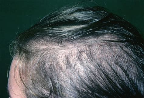 causes of female pattern hair loss my fight against lupus