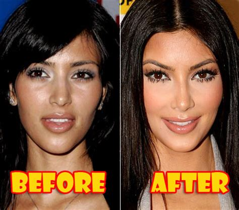 kim kardashian plastic surgery before after pictures 2015 too much botox wonder wardrobes
