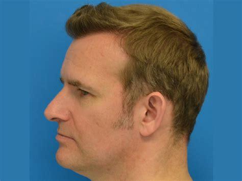 hate hair after surgery 2015 hate hair after surgery 2015 hair transplant photo results
