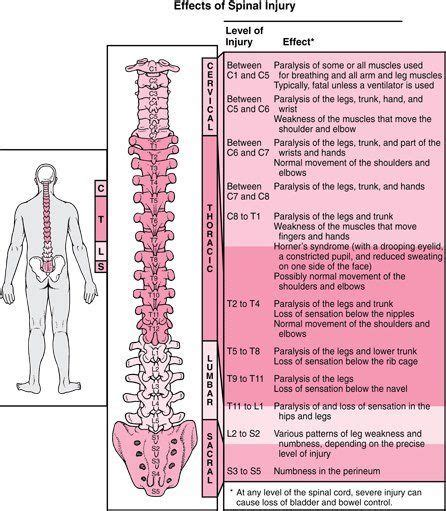 spine c4 c5 diagram my surgeries 1st c5 c6 2ndc6 c7 both anterior