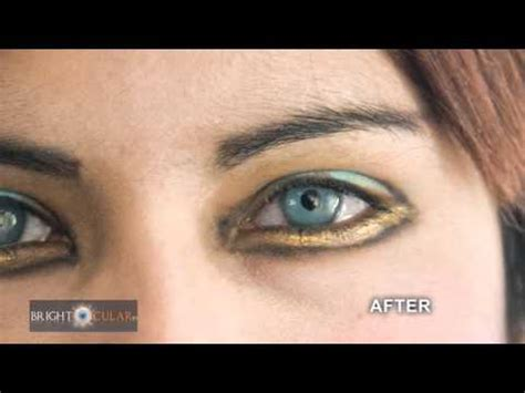 eye color surgery wrong surgery that will turn brown into blue or any