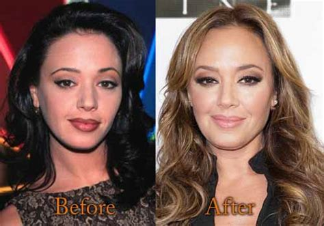 Lea Black Op remini plastic surgery before and after