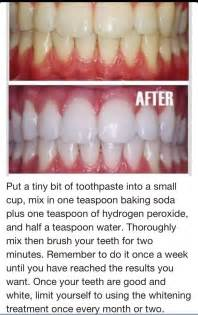 whitening teeth at home toothpaste baking soda hydrogen peroxide to whiten teeth