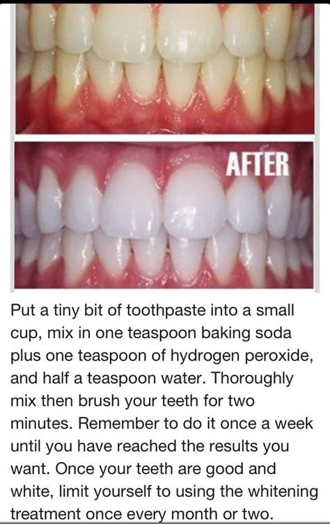 toothpaste baking soda hydrogen peroxide to whiten teeth