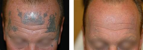 laser tattoo removal cost vancouver photo 1 copy arion skin laser