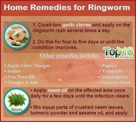 home remedies for ringworm page 3 of 3 top 10 home