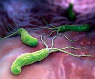 test helicobacter feci dottor leonardo de luca helicobacter pylori