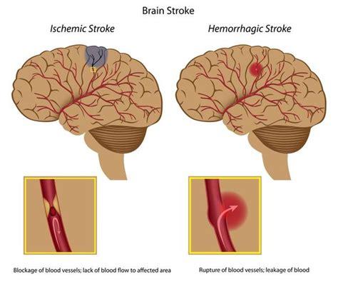 stroke symptoms pre stroke symptoms for things you didn t