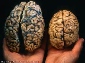 brain size new technique to estimate cognitive ability discovered daily mail