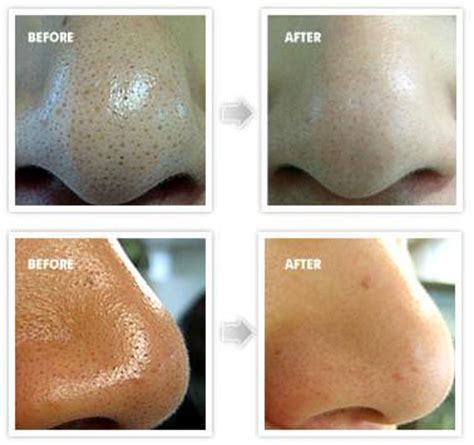 home remedies to get rid of blackheads how to get rid of annoying blackheads on nose fast and
