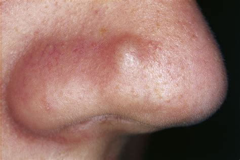 nose on pimples acne and skin care advice yoderm