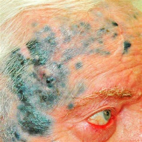 blackhead king blackhead king pimples cyst zit popping