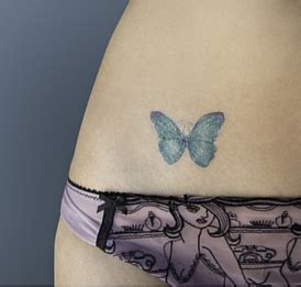tattoo removal preston treatments glow centre