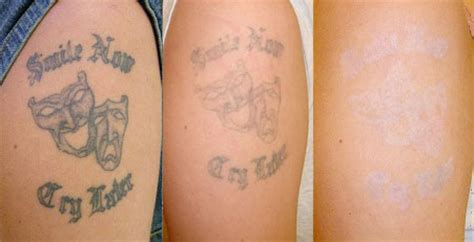25 tattoo removal before and after pictures inkdoneright