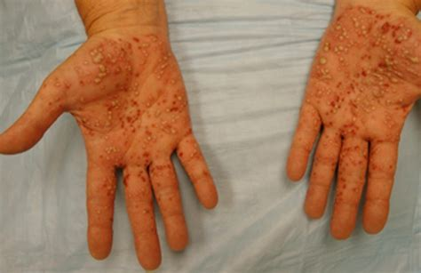 pustules pestilence and tudor treatments and ailments of henry viii books pustular psoriasis pictures treatment symptoms causes