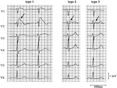 ecg pattern meaning brugada syndrome life in the fastlane ecg library