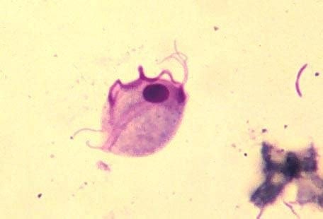 Trichomonas In Stool by Intestinal Flagellates 2 7 Clinical Laboratory Science