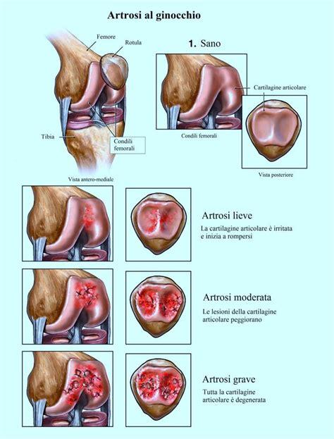 dolore al ginocchio interno dolore al ginocchio interno esterno laterale cause