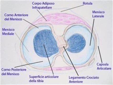 lesione corno posteriore menisco interno anatomia ginocchio legamenti menisco e