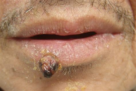 pyogenic granulomas treatment images