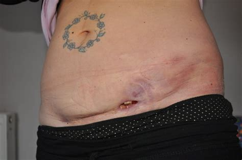 hematoma after c section surgery c section complications years later c section