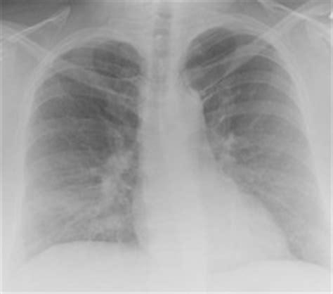 res  management  restrictive lung diseases crc
