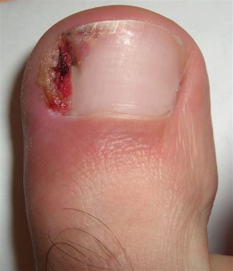 Toe Nail by Ingrown Nail