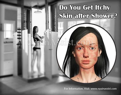 Why Does Skin Itch After Showering by Causes Of Itchy Skin After Shower Remedies To Get Rid Of It