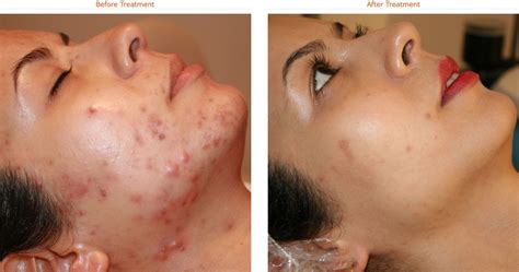Skincare For The Treatment Of Acne by Tretinoin To Get Healthy And Glowing Skin Remedymart