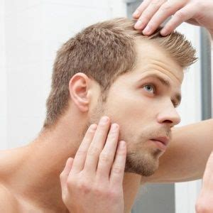 what percentage of men lose hair what percentage of men lose hair is male hair loss