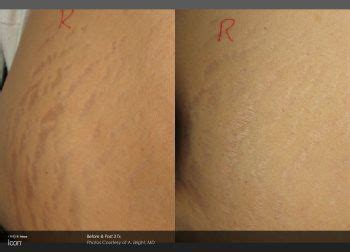 laser stretch mark removal treatment coolsculpting