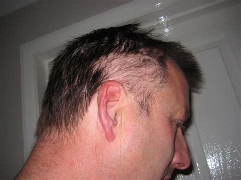 haircuts to hide alopecia haircuts models ideas alopecia hair loss hair cuts lovely hair loss thinning