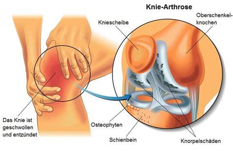 Sport Der Aveo Depan 3 Cm arthrose knie behandlung hyalurons 228 ure ern 228 hrung sport