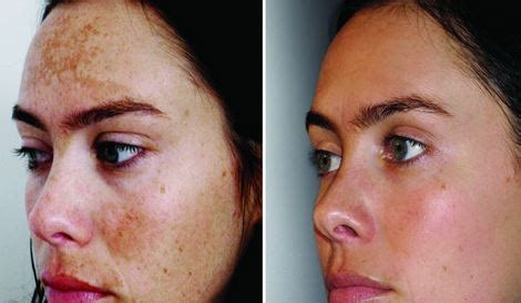 light chemical peel before and after types of chemical peels for acne meaning before and