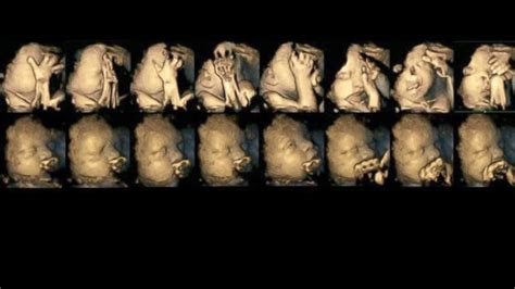 Ultrasound Study Reveals How Some Fetuses React to Smoking ...