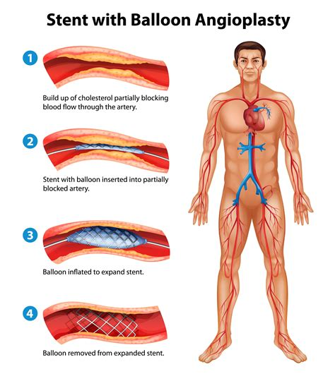 coronary angioplasty with or without stent implantation common heart procedures explained coronary angiogram and