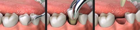 uncovering the facts of socket dental office in