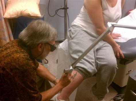free tattoo removal programs a new start removal program at kaiser permanente