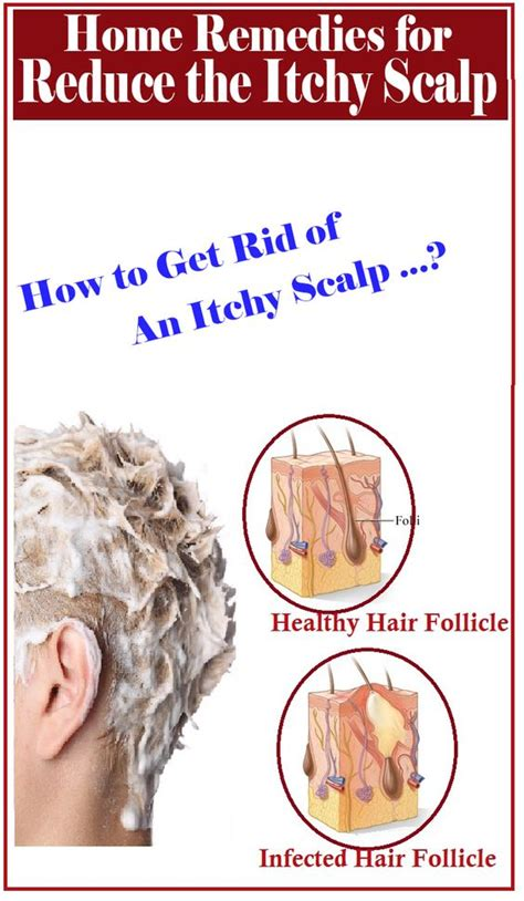 home remedies for itchy scalp grooming