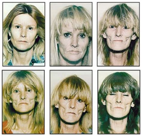 Detox From Meth Use by Meth User Pictures