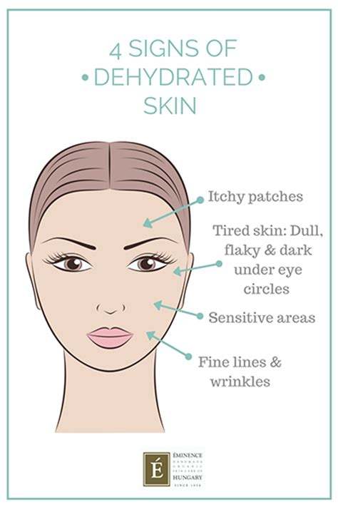 dehydration test 4 signs your skin is dehydrated how to fix it eminence