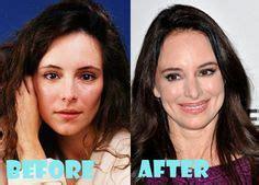 plastic surgery lovelysurgerycom images