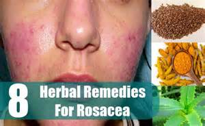 home remedies for rosacea 8 effective herbal remedies for rosacea