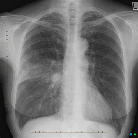 pneumonia after c section consolidation anterior segment of right upper lobe