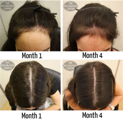 female pattern hair loss during pregnancy medicines treatments lavina health and beauty